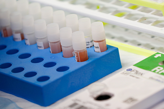 Румънска клиника обяви, че има ваксина срещу коронавируса