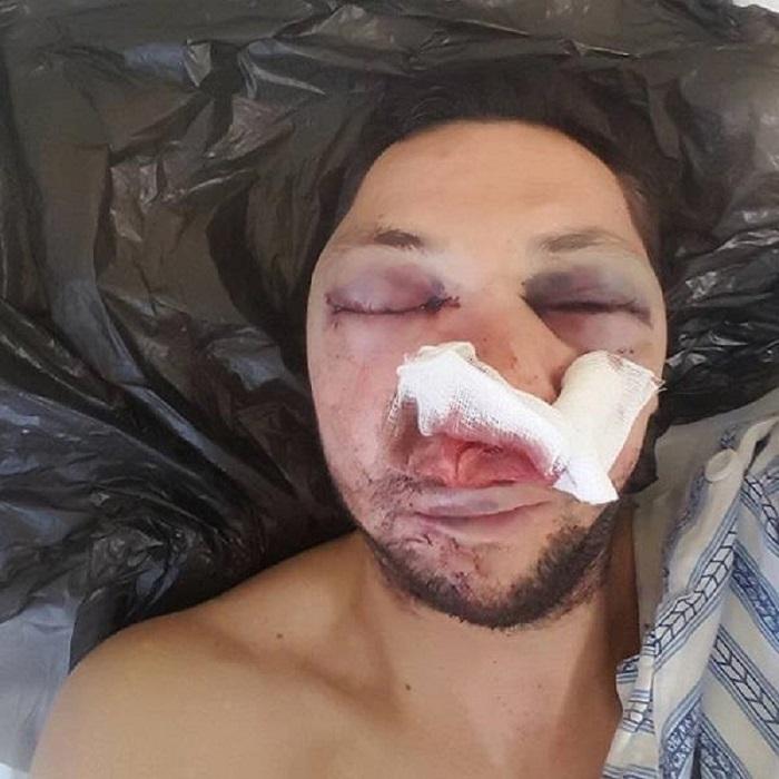 Мартин Душев е задържан за побоя над поморийския журналист