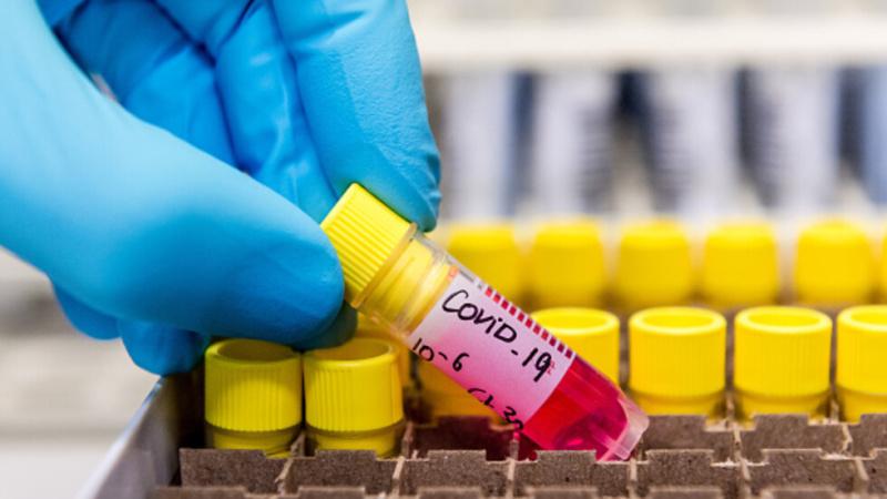 Здравната каса: Неосигурените няма да получават безплатни лекарства за COVID-19