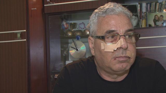 Тийнейджър-побойник забил юмруци в лицето на Чанко Стайков без да каже и дума