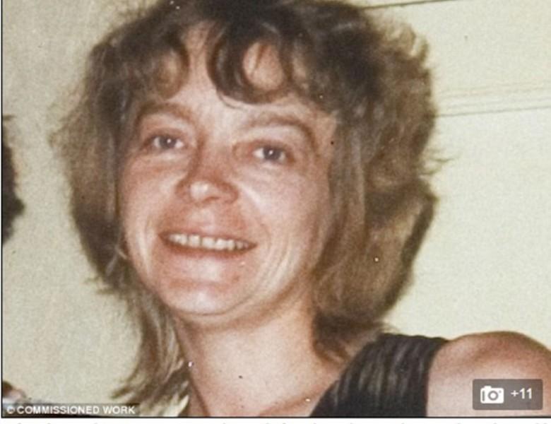 Почина първата жена с присадено лице