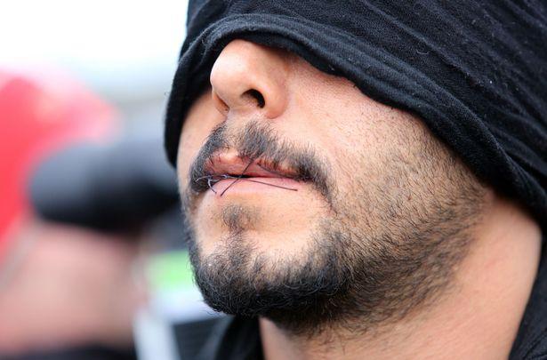Мигранти в Кале зашиха устите си